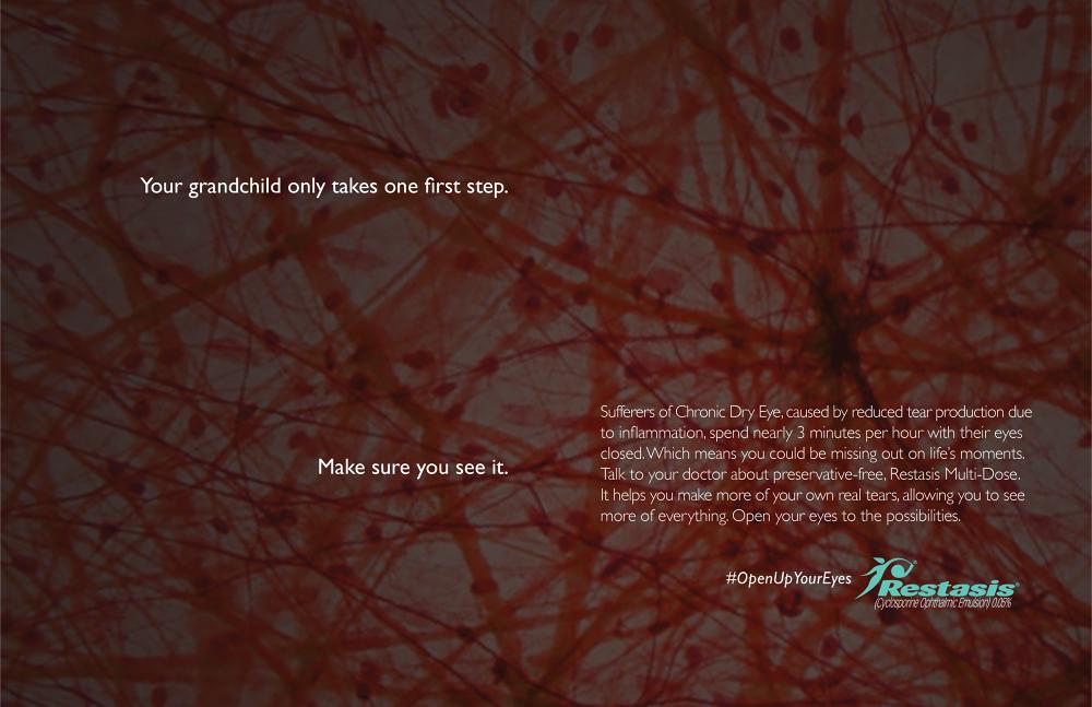 Restasis - Michael Gorelic ACD/CD - Writer Portfolio