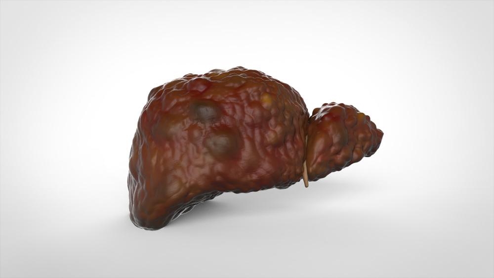 Cunnilingus liver disease