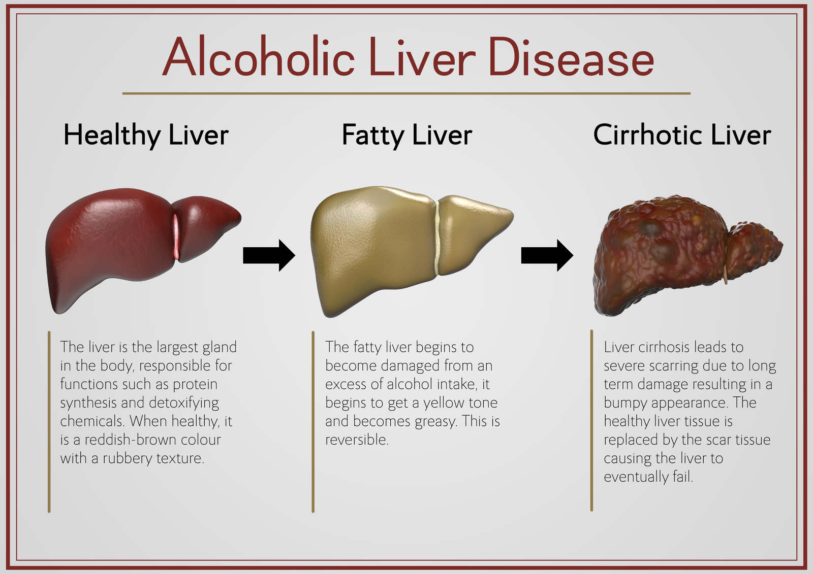 penyakit akibat minum alkohol